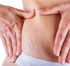 stretch marks Supplement